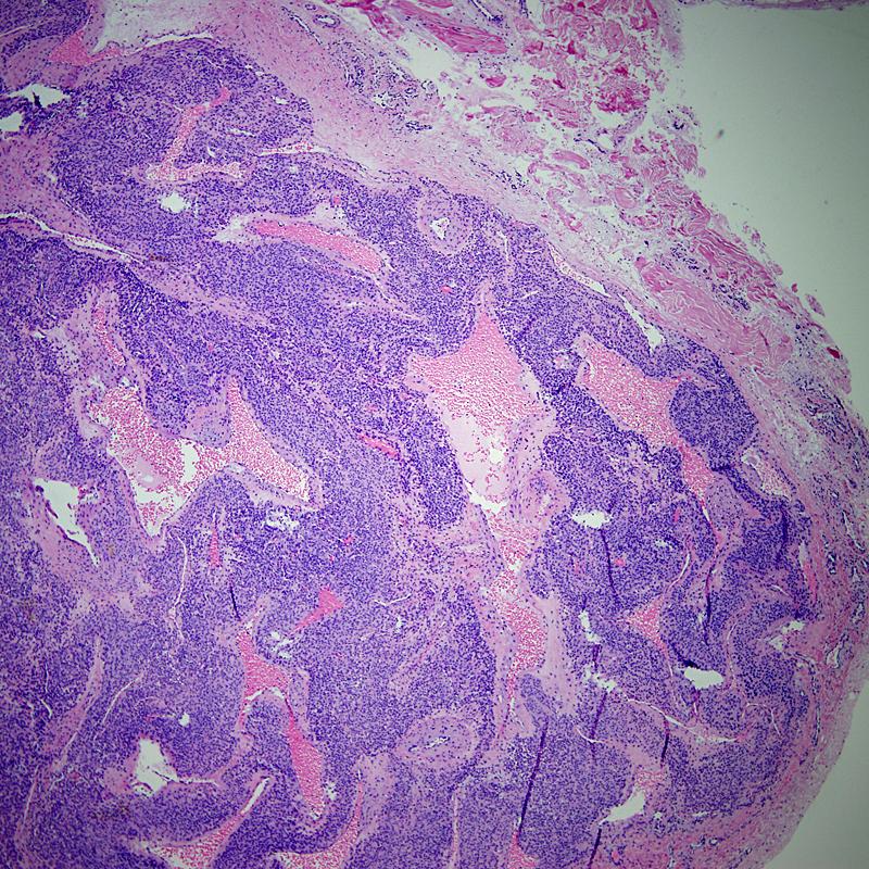 Glomus tumor - soft tissue | BoneTumor org