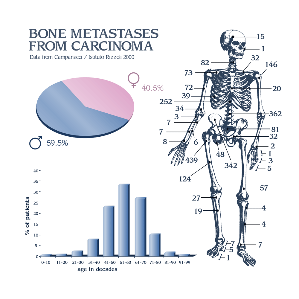 Metastatic Kidney Cancer Bonetumor Org